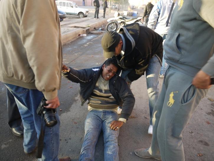 إصابة المصور الصحفي لجريدة الاحداث عبد النبي الوراق بجروح اثر مواجهات سيدي يوسف بن علي