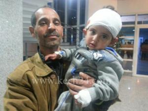 انهيار سقف اسمنتي على رأس طفلة صغيرة، وعائلة الضحية تراسل القلوب الرحيمة بعد أن لفظها مستشفى مراكش