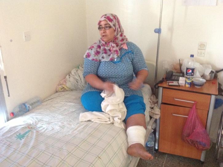 اعتداء زوج على زوجته يحدث جرحين غائرين على مستوى ساقها ورأسها بمراكش + صورة الضحية