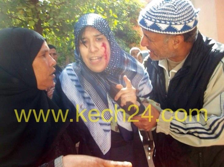بالشماعية....... زوجة برلماني ومستشارة بمجلس الشماعية تعتدي على مواطنة وتصيبها بجرح غائر