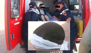 عاجل: نقل تلميذ تعرض لكسر خلال حصة التربية البدنية إلى المستشفى الإقليمي لشيشاوة + تفاصيل حصرية