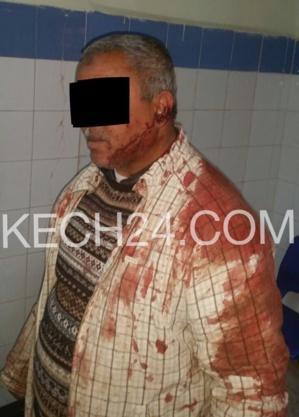 هكذا اعتدى ڤيدور على سائق طاكسي بمنطقة النخيل بمراكش + صورة الضحية