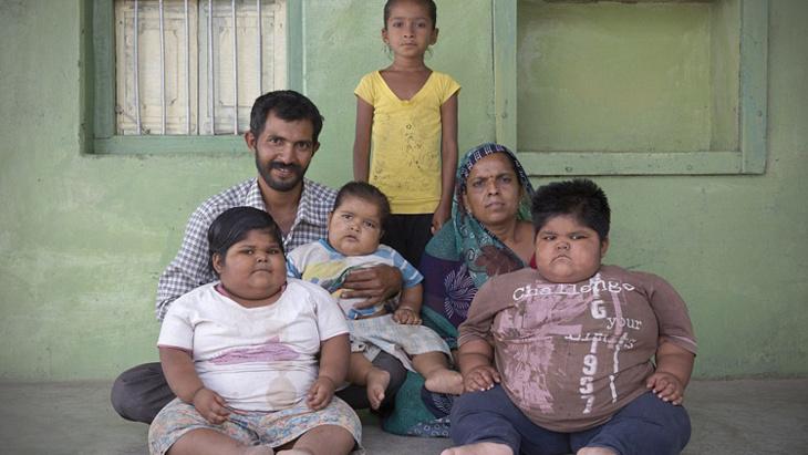 رجل هندي يخطط لبيع إحدى كليتيه من أجل توفير المال لعلاج أطفاله