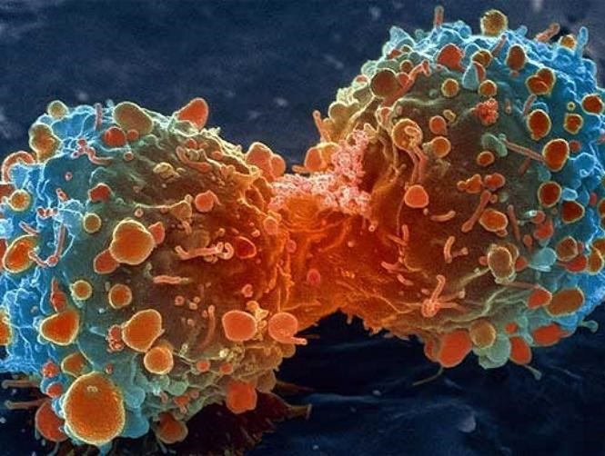 جديد الطب: كشف السرطان عبر الهاتف الذكي