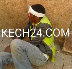 ضحك البناية ... اصابة عامل بناء بجرح خطير بعد خلاف مع زميله بمراكش + صورة حصرية