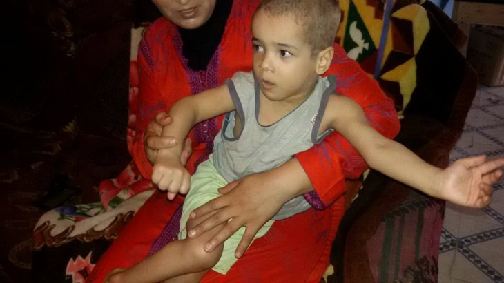حالة إنسانية: نبيل طفل حوَّلته الحمى إلى معاق يناشد المحسنين التكفل بعلاجه