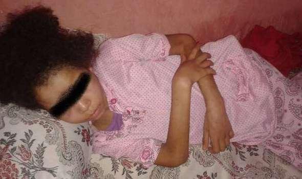 طفلة بأكادير تتعرض للاغتصاب من قبل زوج أمها وحرق مؤخرتها