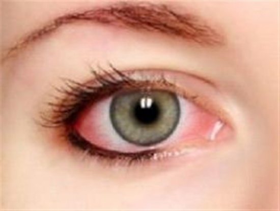 أسباب إحمرار العين وطريقة معالجته