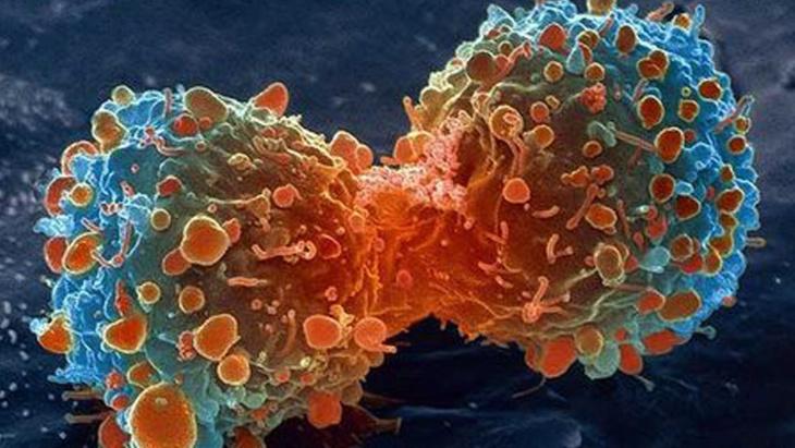 هذه أربع مهن تحفز الأورام السرطانية