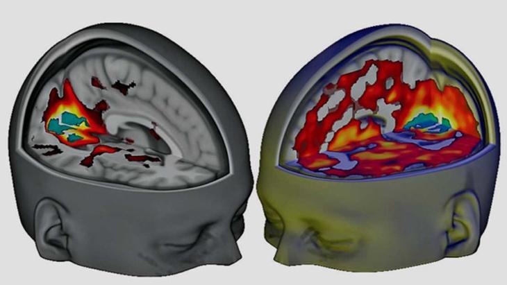 العلماء يكشفون تأثير حبوب الهلوسة على المخ