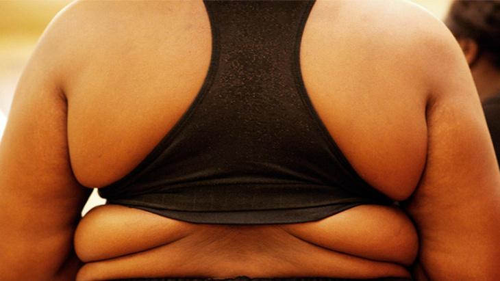أطباء: ابتلاع بالونات منفوخة يخفف الوزن الزائد