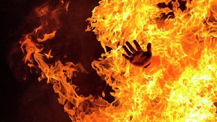 علماء روس يكتشفون سر استجابة الجسم للحرارة