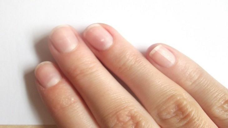 طبيب نرويجي: طول أصابع اليد تدل على ميول الإنسان