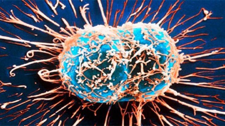 علماء: هكذا تنمو الأورام السرطانية