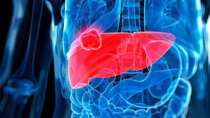 الكشف عن أول عقّار ناجع لعلاج سرطان الكبد المتقدم