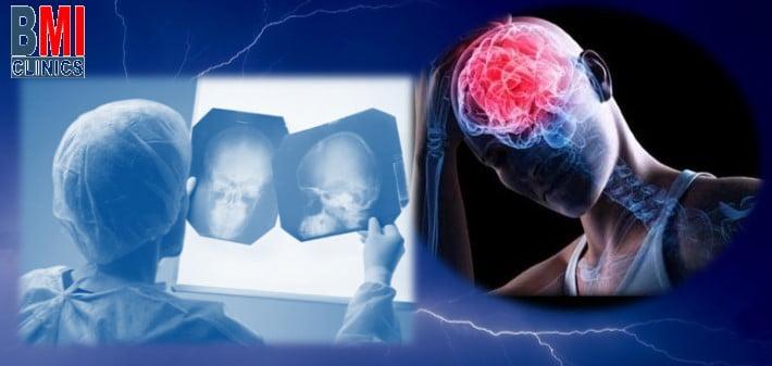 العلماء: ارتجاج الدماغ له علاقة بخطر الإصابة بمرض الزهايمر