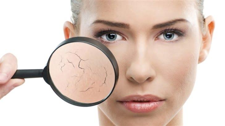 5 وصفات طبيعية تخلص بشرتكِ من السموم