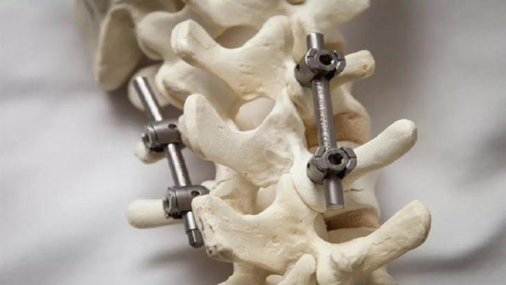 العلماء يبتكرون خلطة معدنية بديلة للعظام البشرية