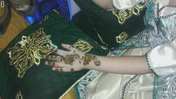 عندما تحتمي المغربيات بعيادة الطبيب دفاعاً عن شرفهن ليلة الزفاف