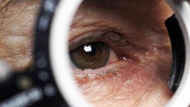 تجنب النوبات القلبية 5 سنوات بفحص العين