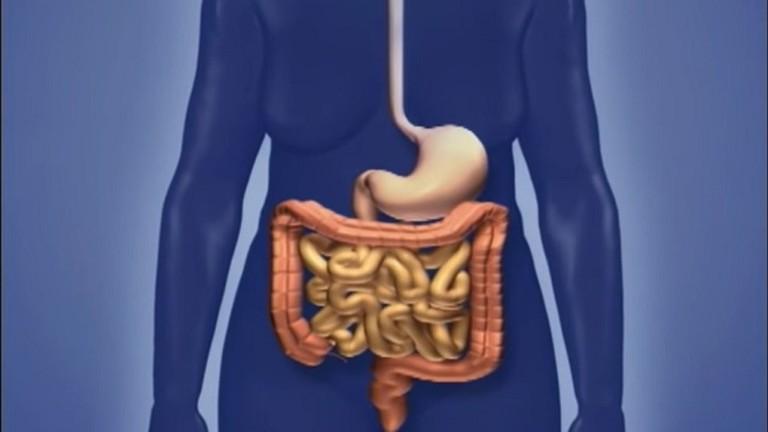 كشف الأعراض الرئيسية لسرطان الأمعاء