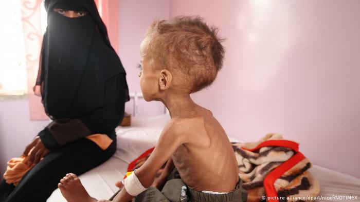 """اليمن """"يتجه نحو أسوأ مجاعة"""" والوضع يحتاج لـ""""4 مليارات دولار"""""""