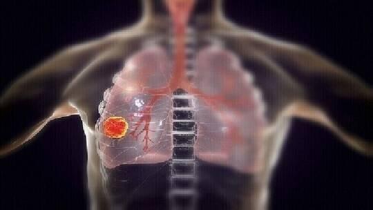 """خمس علامات تحذيرية """"مفاجئة"""" لسرطان الرئة غالبا ما نتجاهلها"""