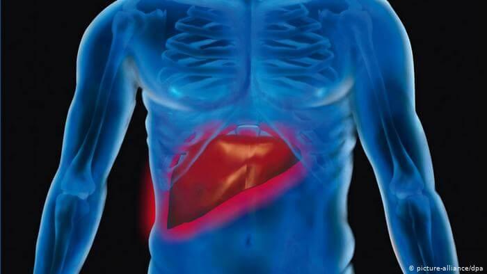 كشف أعراض غير تقليدية لتليّف الكبد